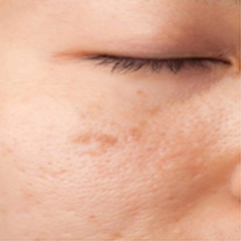 Vitiligo (Leucoderma) White patches on skin Treatment Cure