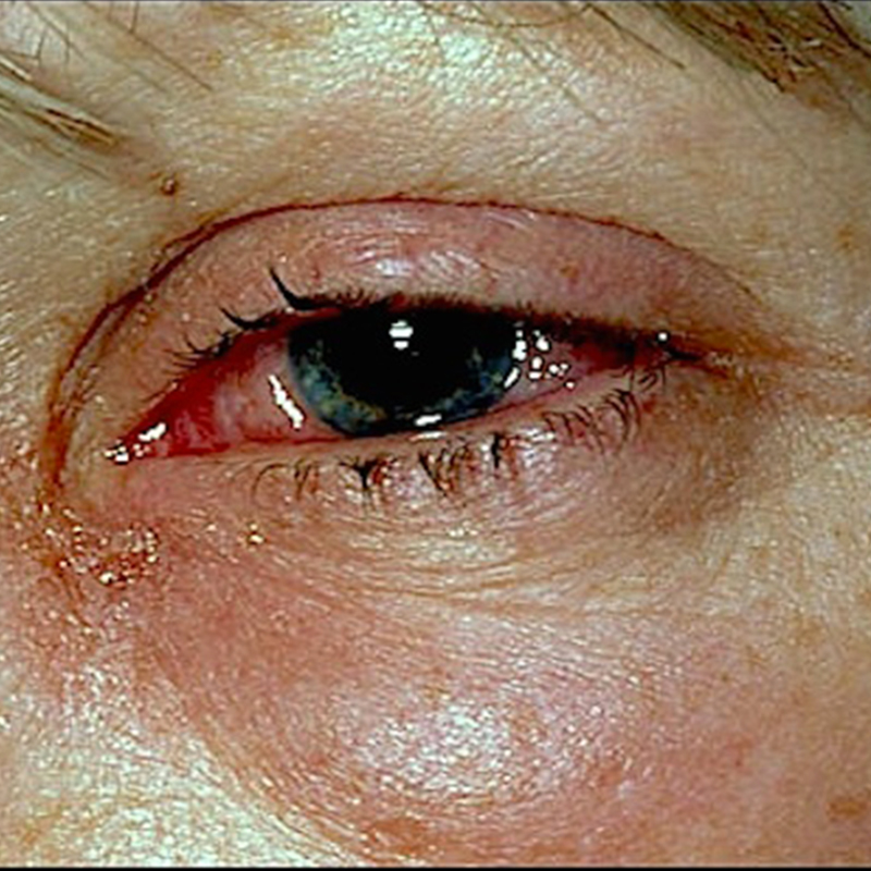 Allergic Conjunctivitis Vs Bacterial Pictures To Pin On: Bacterial Allergic Viral Conjunctivitis Symptoms Of Pink Eye