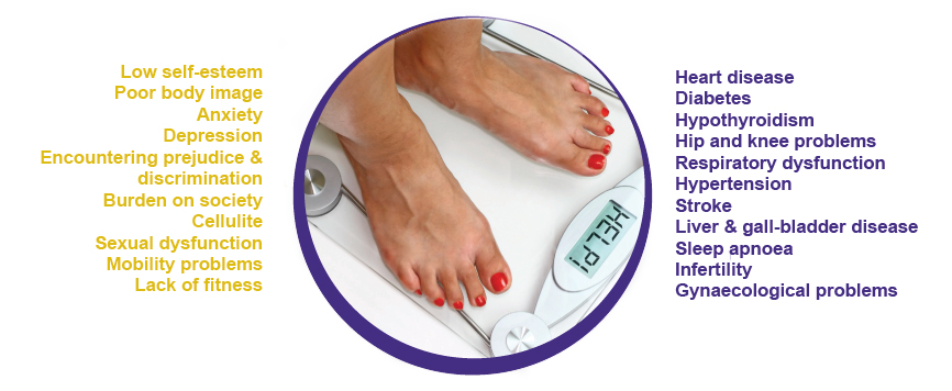 Obesity Treatment: Weight Loss Exercise Programs & Diet Plan